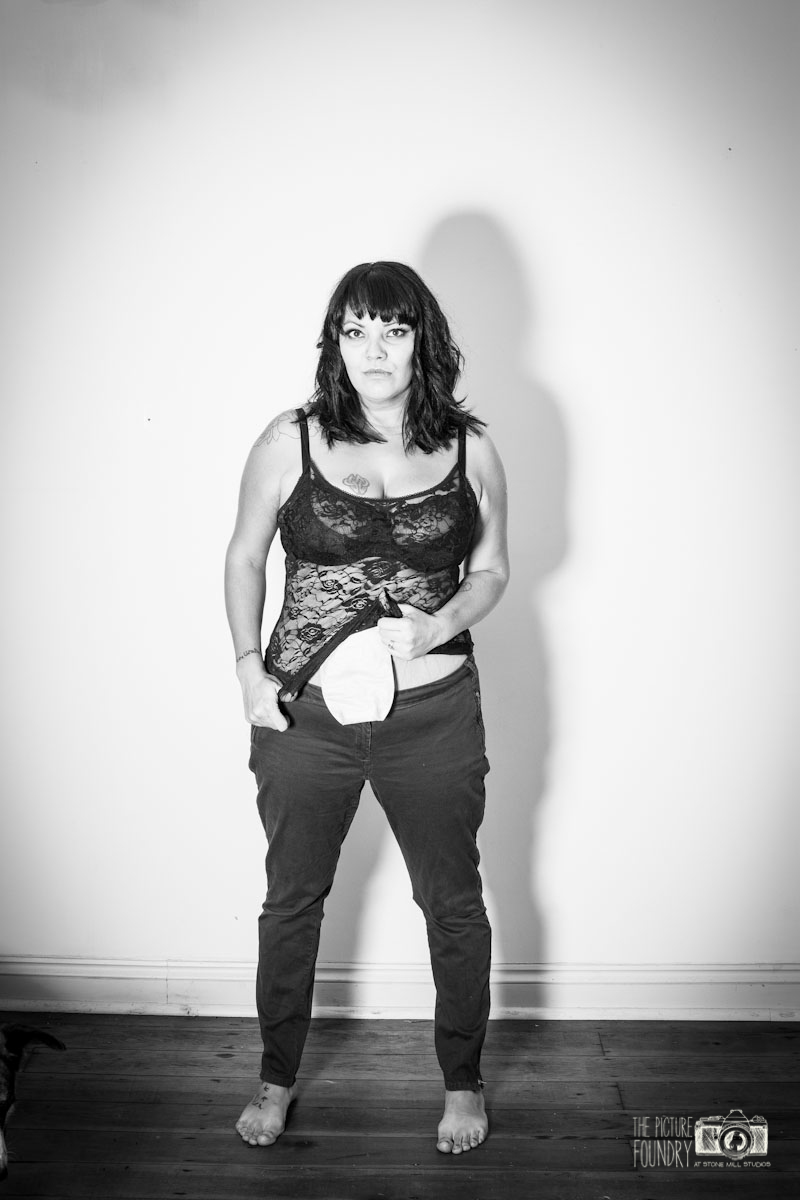 stoma ileostomy photo shoot woman beauty