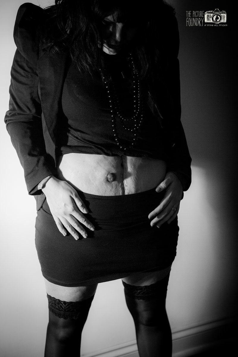 stoma ileostomy femininity black and white photography creative shoot