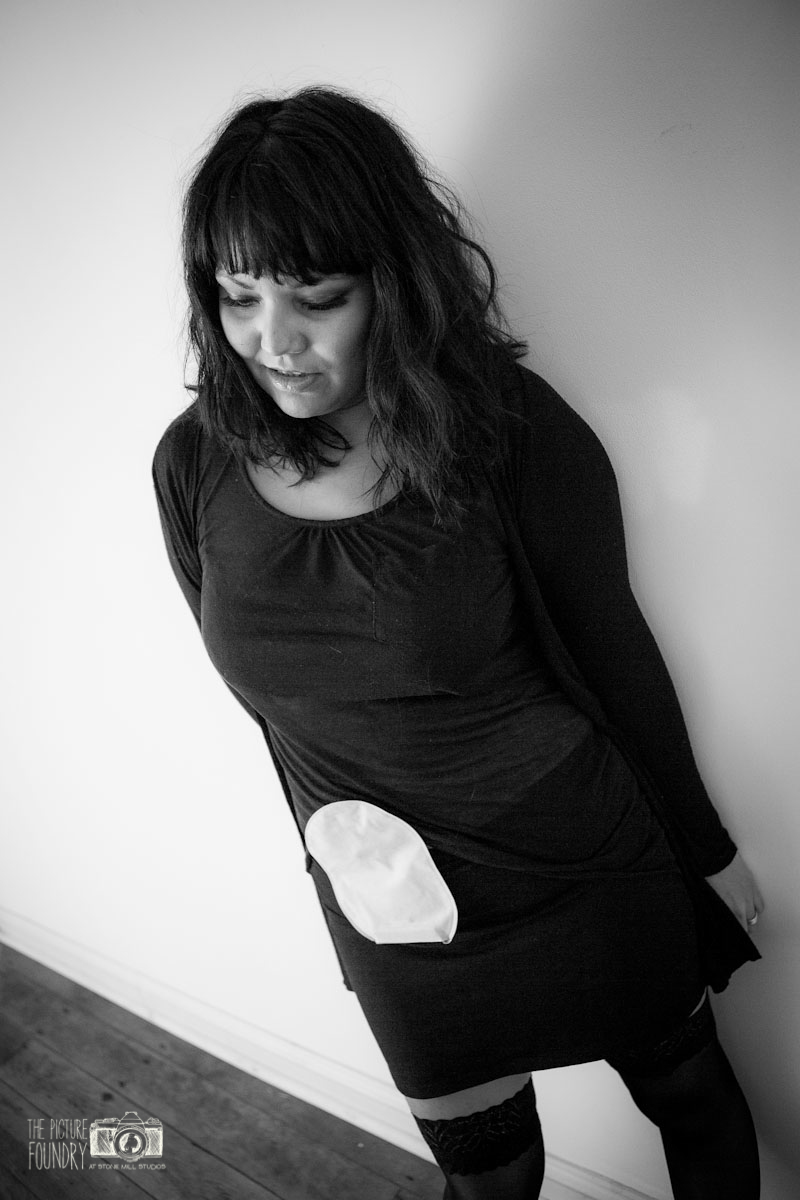 ileostomy and stoma photo shoot black and white female woman with ileostomy bag