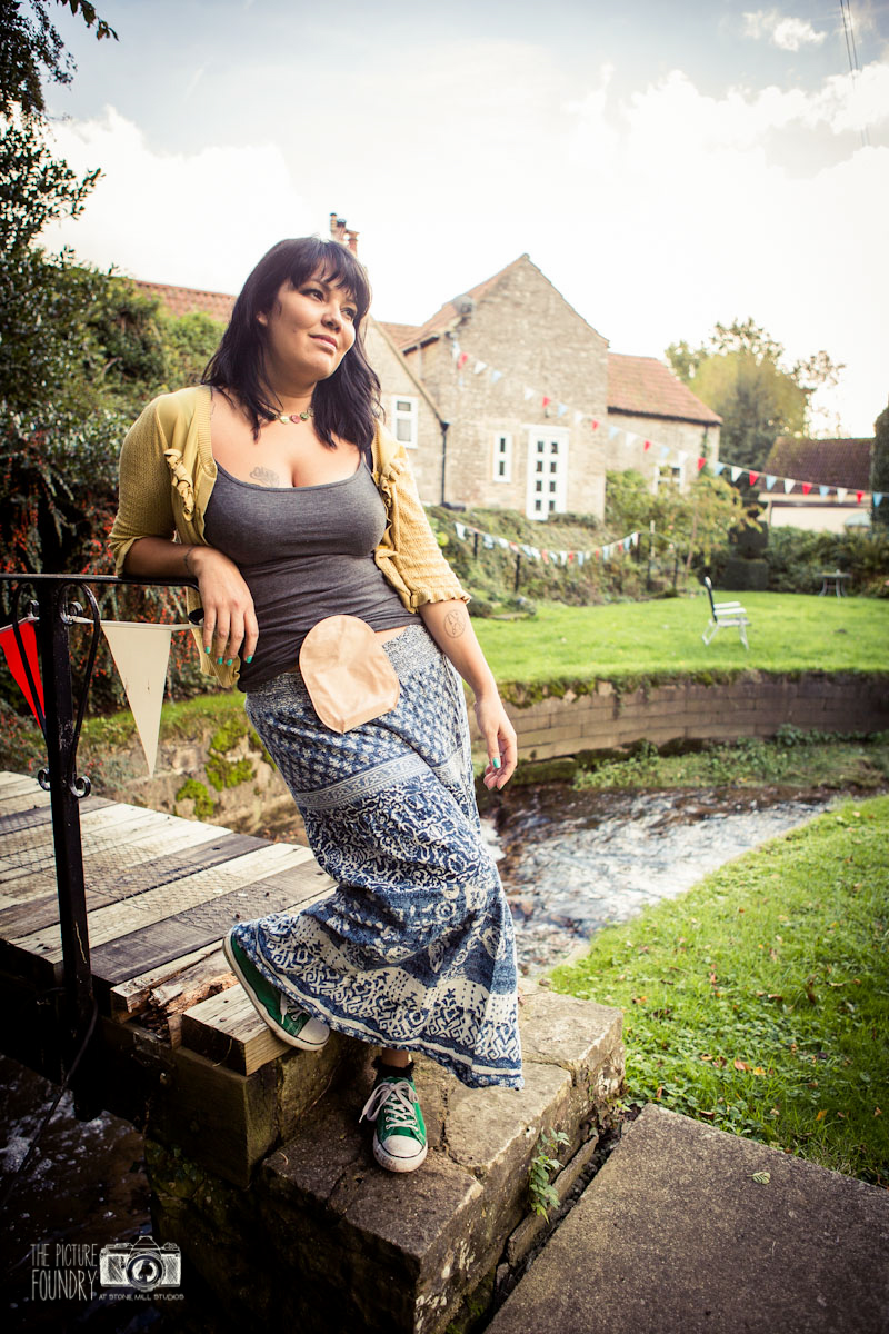 stoma ostomy ileostomy colostomy ibd ulcerative colitis photo shoot