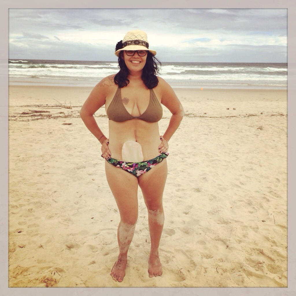 ileostomy bag bikini swimwear beachwear holiday