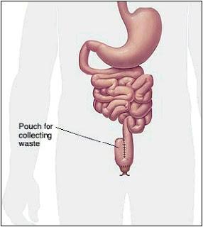 J-pouch diagram