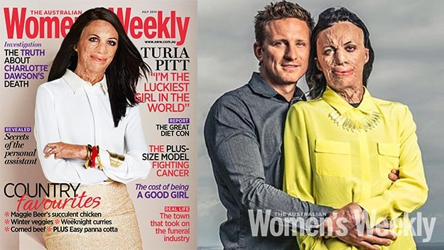 turia pitt burns survivor womens weekly australia