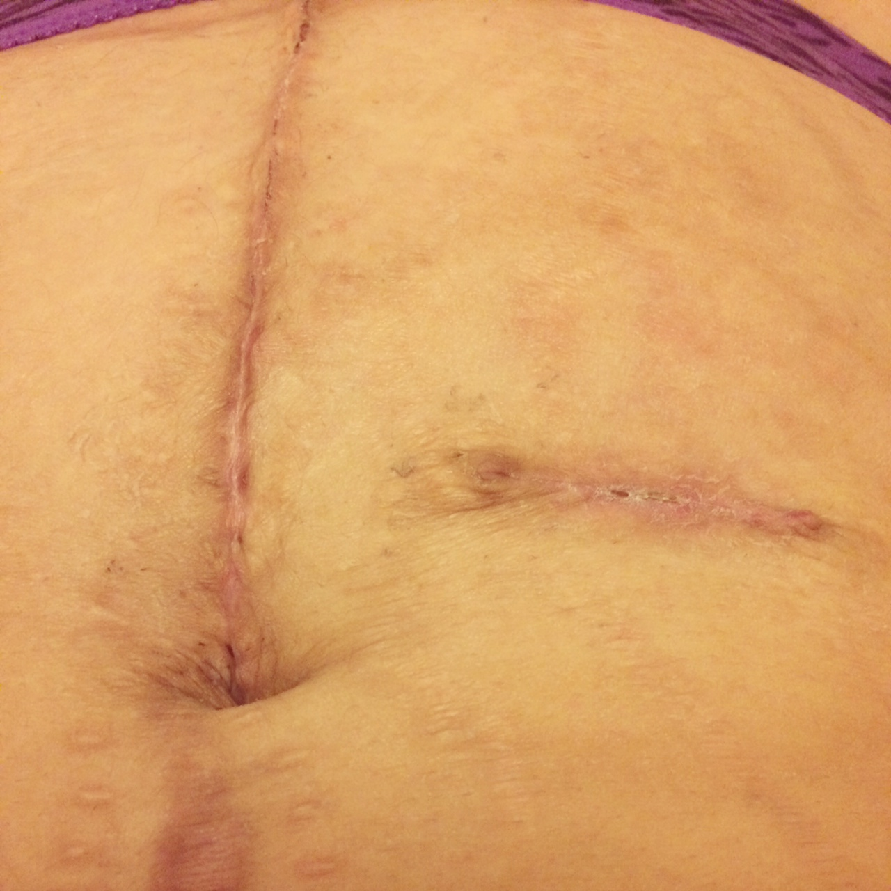 ileostomy j pouch scars post op pictures