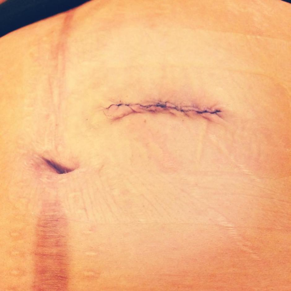 hernia ostomy incisional scar